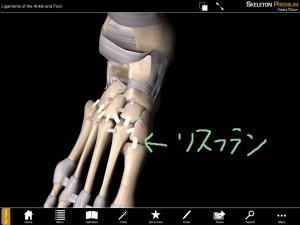 リスフラン靭帯